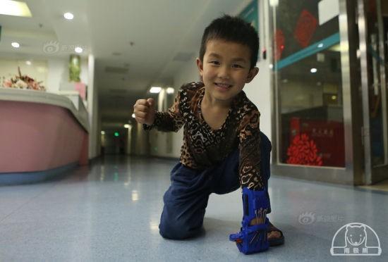 6岁断臂男孩六一前装3D打印假手 可骑自行车抓葡萄
