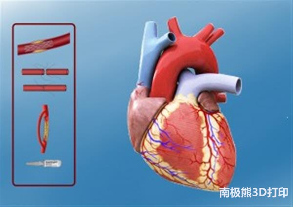 heartbits-project-3d-printed-models-vr-patients-heart-defects-3.jpg