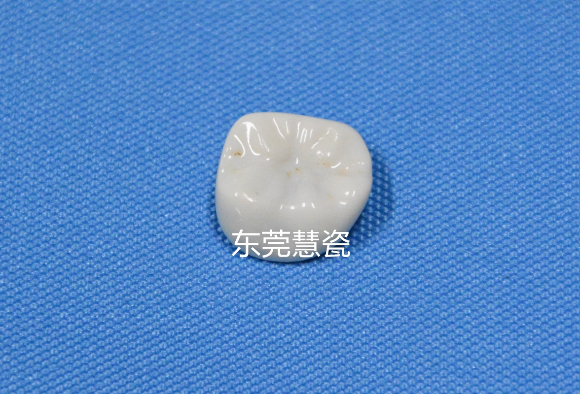 15-牙冠1_副本.jpg
