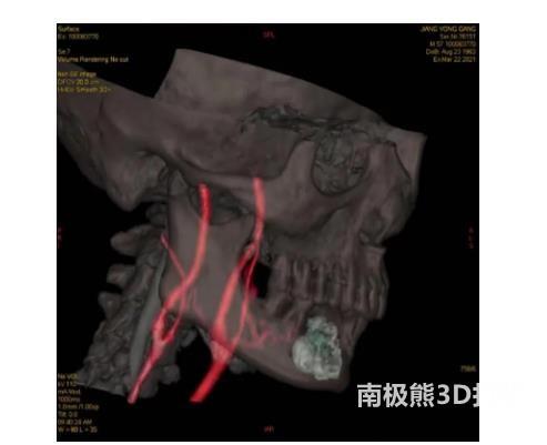 医疗3D打印为晚期舌癌患者完成颈动脉造影术加化疗栓塞术插图1